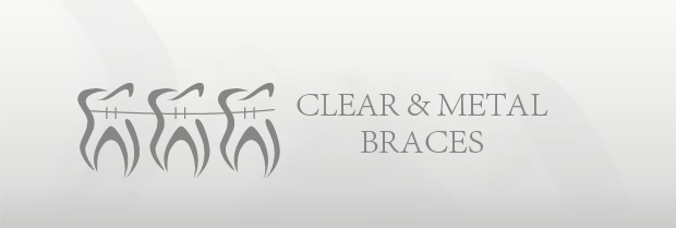 Clear & Metal Braces
