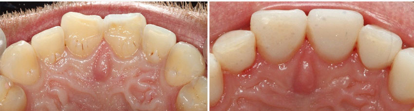 Worn teeth treatment - before and after