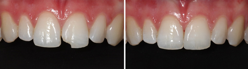 Fractured teeth treatment - before and after
