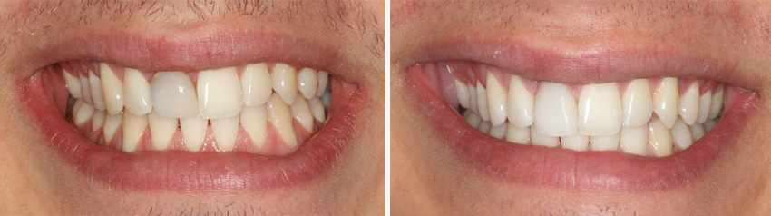 Discoloured teeth treatment - before and after
