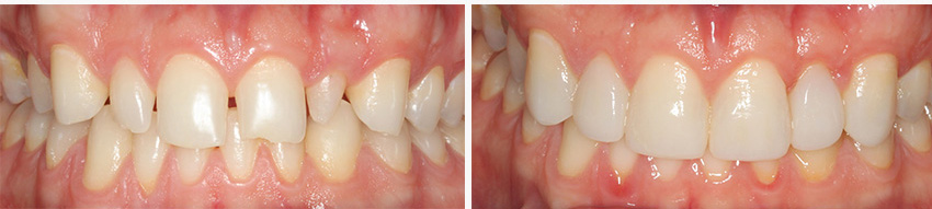 Microdontia treatment - before and after
