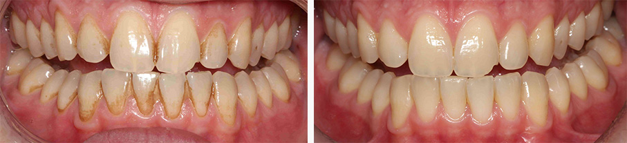 Hygiene Treatment - before and after