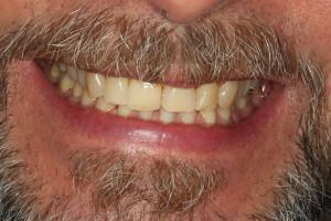 Dental Bridge After