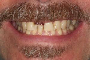 Dental Bridge Before