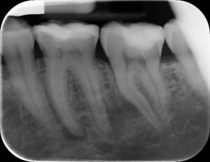 Lower Left Molar Before