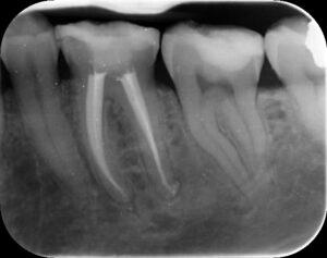Lower Left First Molar Healing