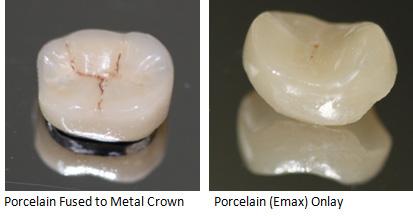 Dental Crown Type