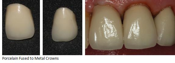 Dental Crowns Porcelain