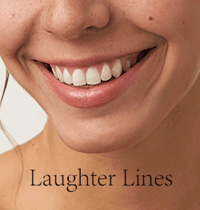 Laughter-Lines-with-type