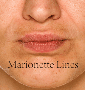 Marionette-Lines-with-type